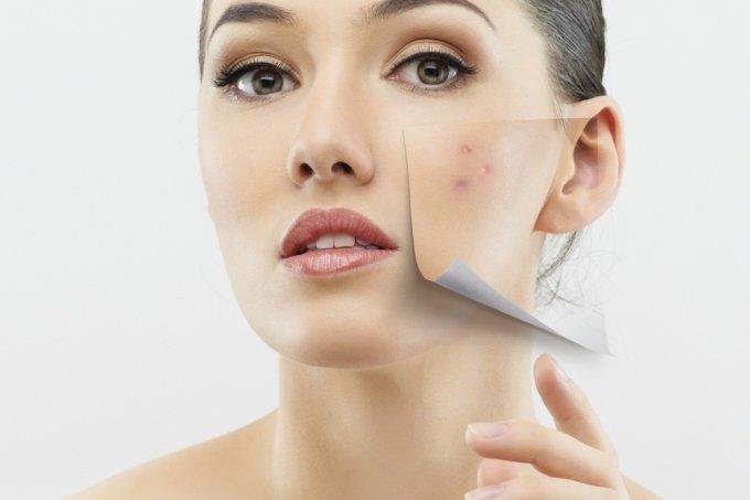 Mulher com acne em parte do rosto