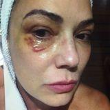 Foto de Luiza Brunet com hematoma no olho direito