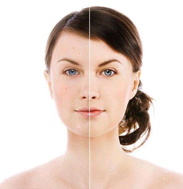 Mulher com pintas em uma parte do rosto