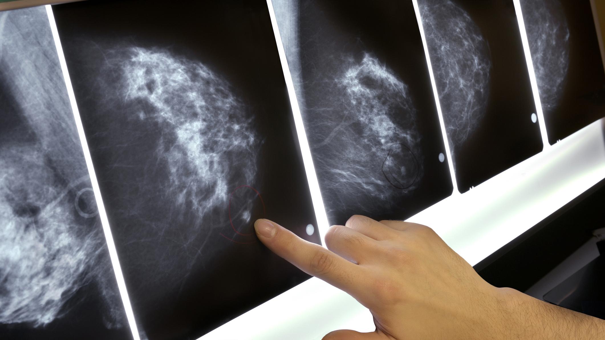 cancer mamar malign