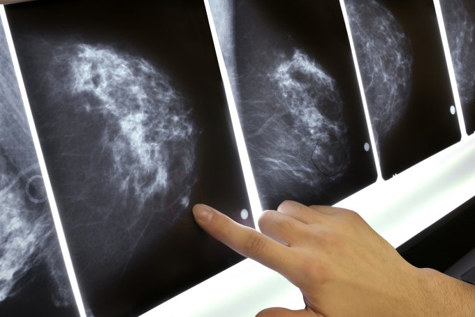 mammogram-review