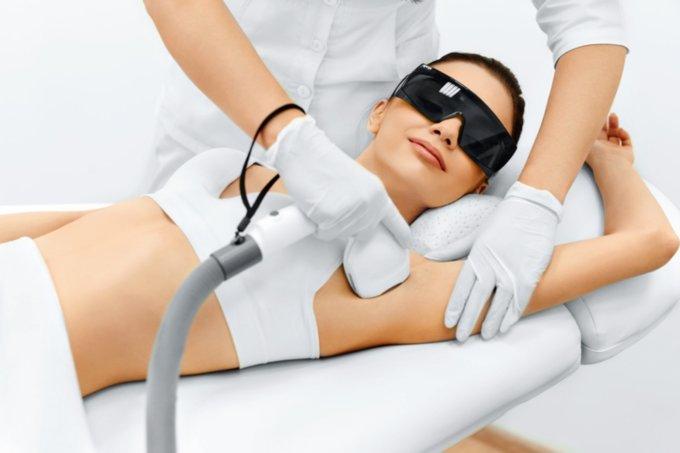 depilação a laser – axilas