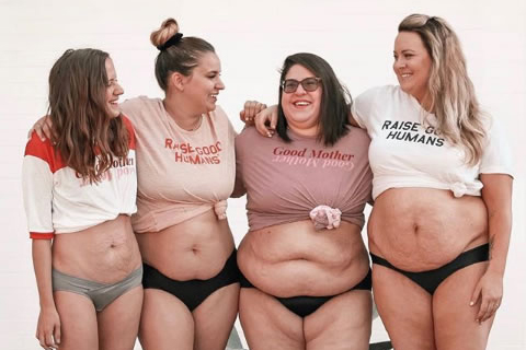 mulheres mostram corpos naturais pós parto