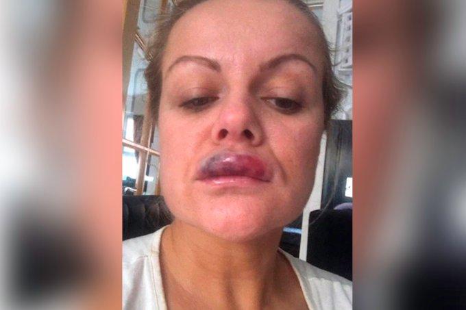 Mulher quase fica cega ao fazer preenchimento labial