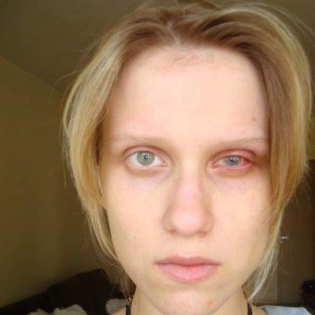 Marcela com o olho vermelho e inchado