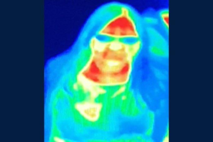 Câmera térmica detecta câncer de mama