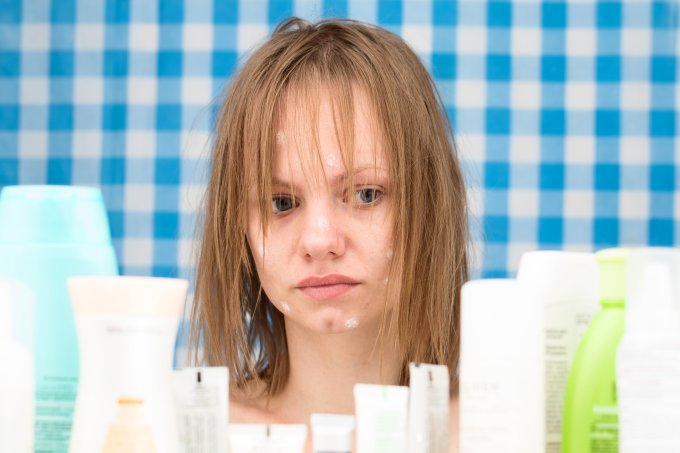 Acne x autoconfiança: a saúde da pele pode interferir na saúde mental