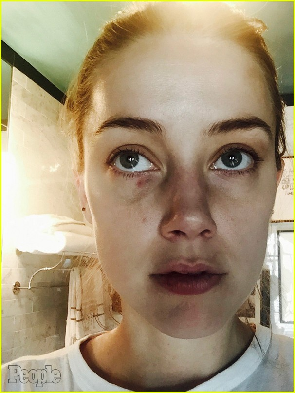 amber-heard-domestic-violence-photos-02