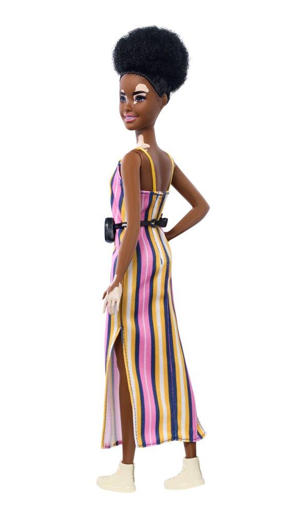 Barbie com vitiligo