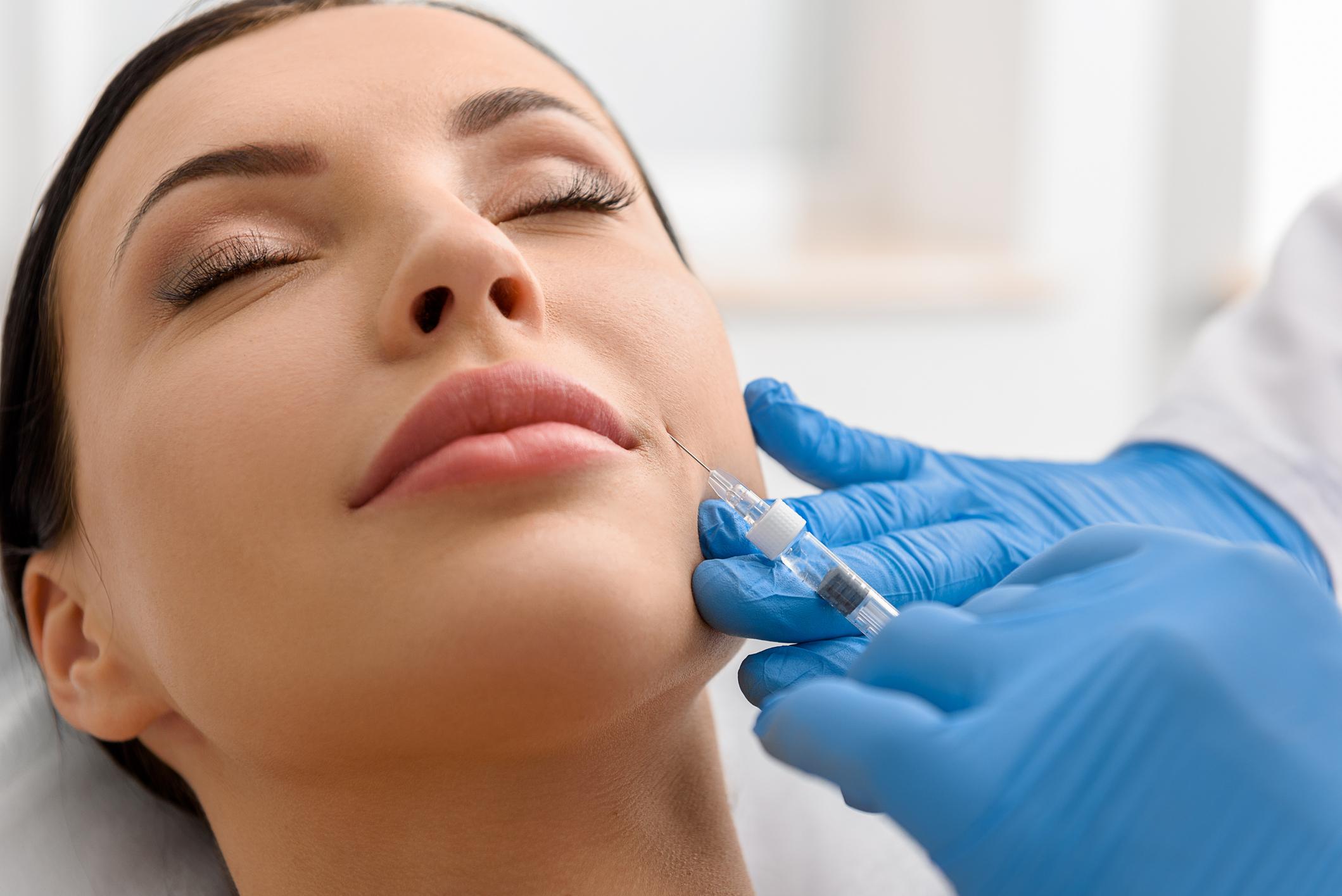 Ácido hialurônico - preenchimento bigode chinês
