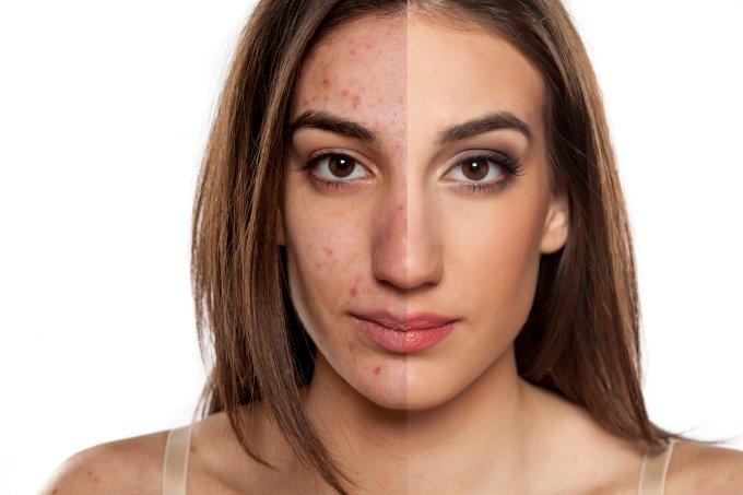 Como proteger a acne em tratamento quando quiser se maquiar