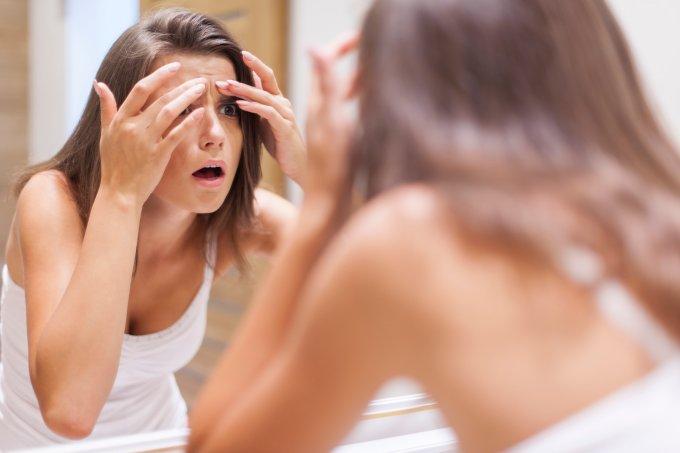 Estresse pode causar acne