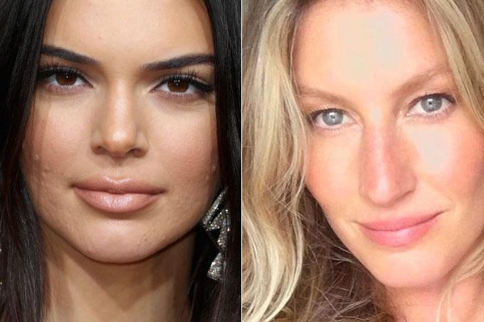 Famosas que têm ou já tiveram acne – Kendall Jenner e Gisele Bundchen