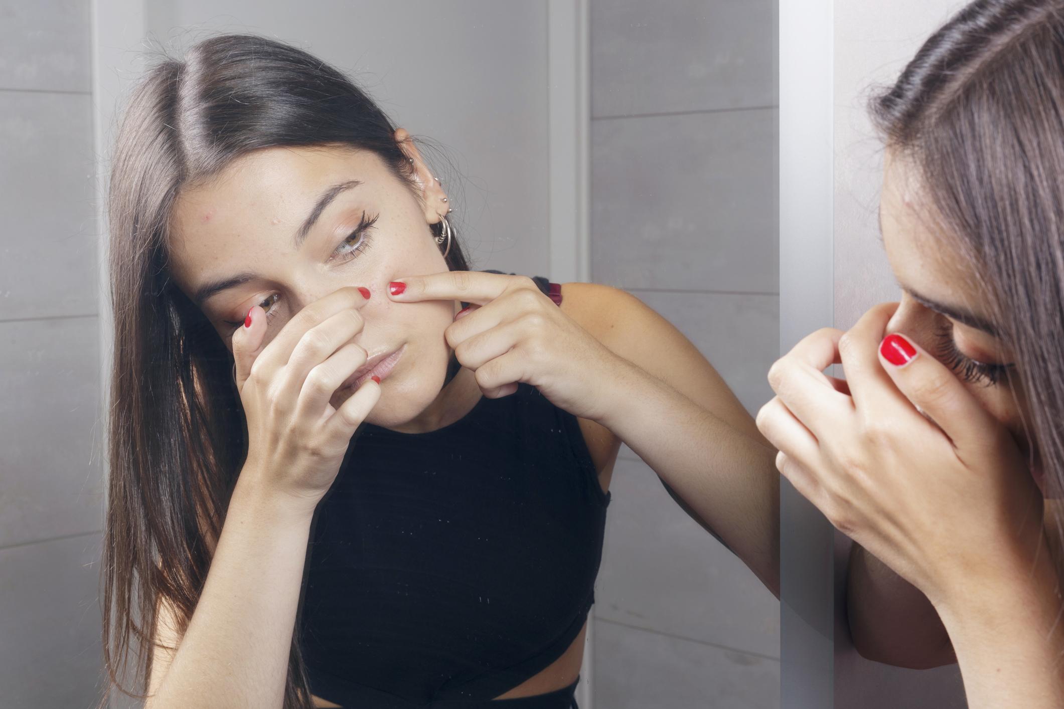 Hábitos pele livre de manchas - não cutucar o rosto