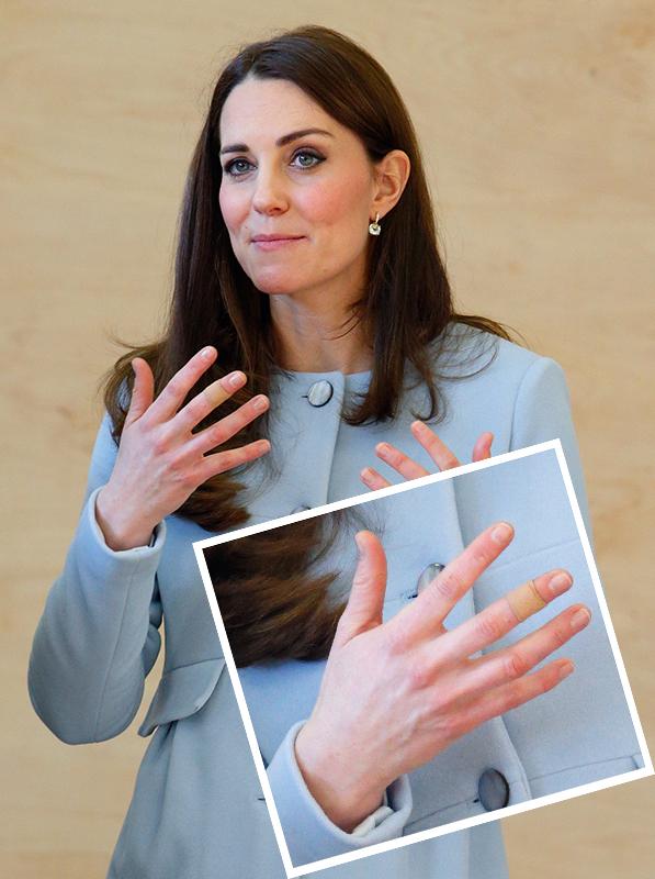 Kate Middleton curativos nas mãos