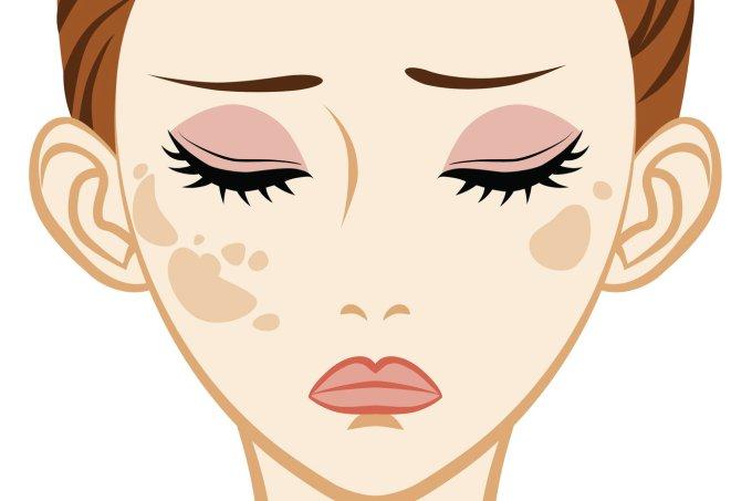 Manchas na pele – causas, tratamentos, clareamento