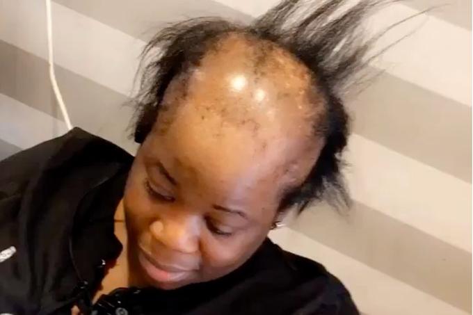 Mulher com alopecia passa por transformação