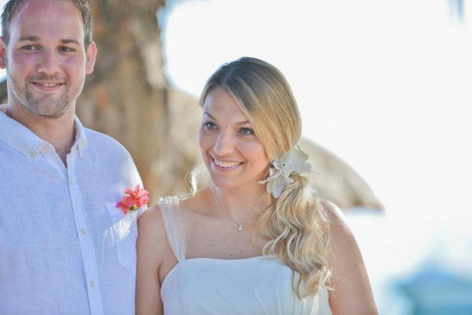 Noiva conta que perdeu quase todos os cabelos após se estressar com os preparativos do próprio casamento