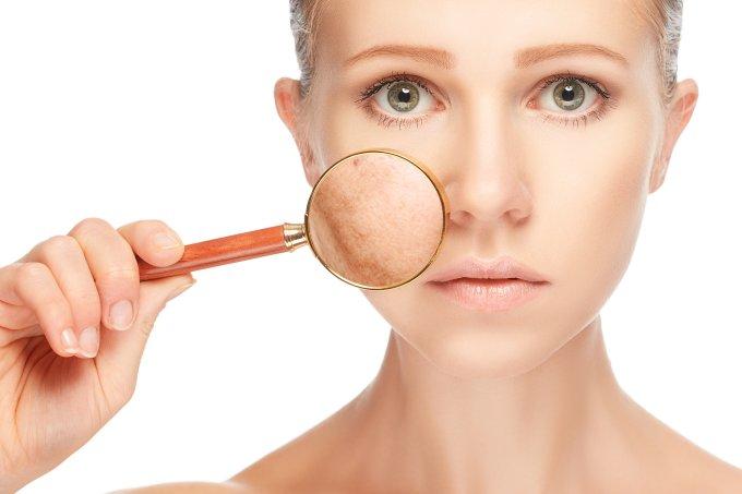 Novos tratamentos contra o melasma