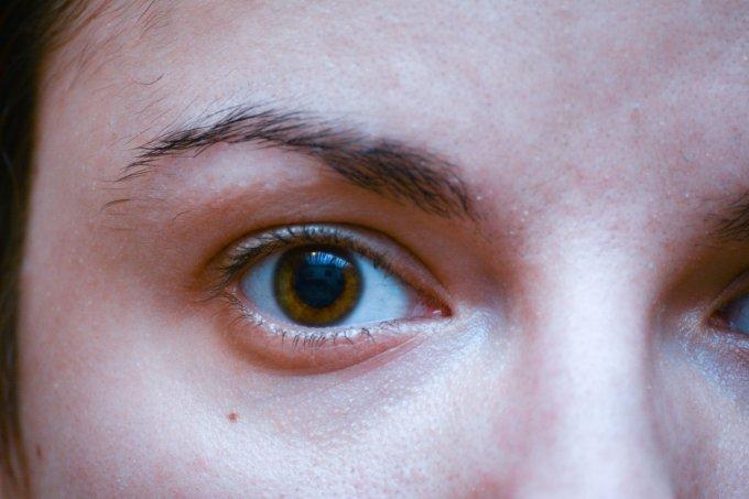 Entenda por que as olheiras surgem e saiba como lidar com elas