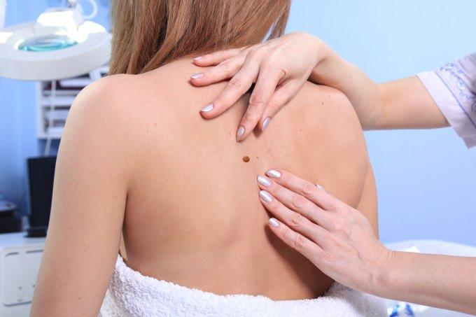 Pintas sardas câncer de pele doenças