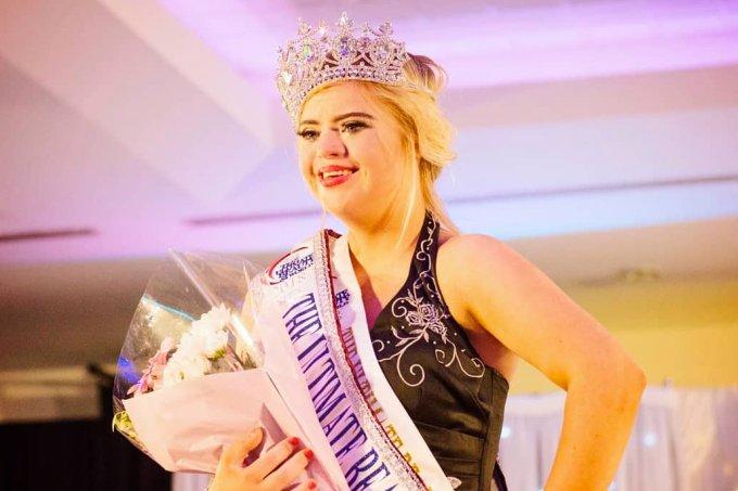 Kate Grant – primeira garota com Síndrome de Down a ganhar um concurso de beleza