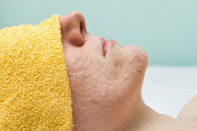 Como eliminar ou amenizar as cicatrizes da acne