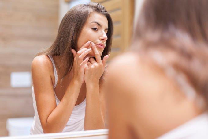 Causas da acne e como tratá-las