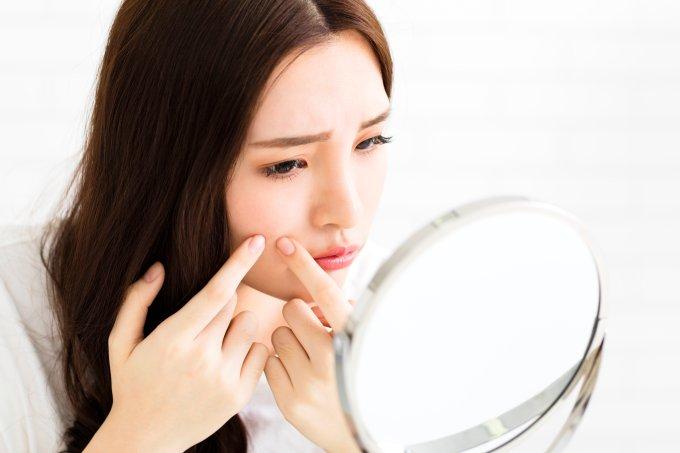 Mitos e verdades sobre acne