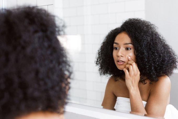 Hábitos que quem sofre com espinhas deve evitar