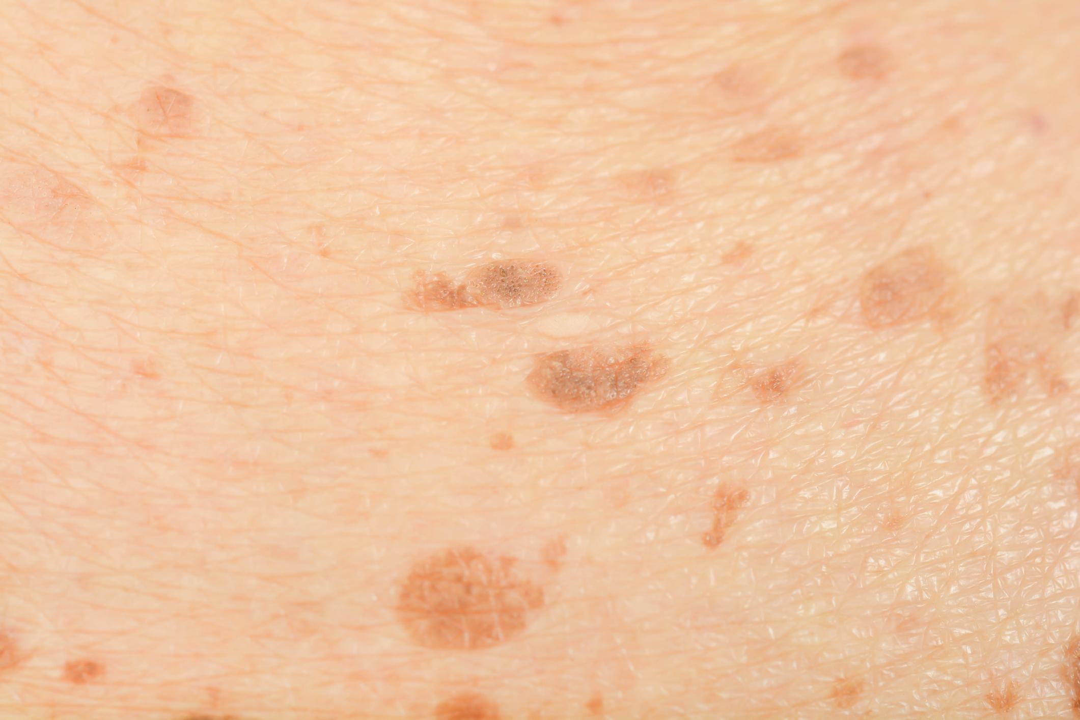 Tipos de manchas de pele - melasma
