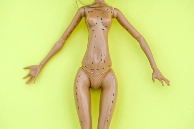Boneca com marcações de cirurgia plástica