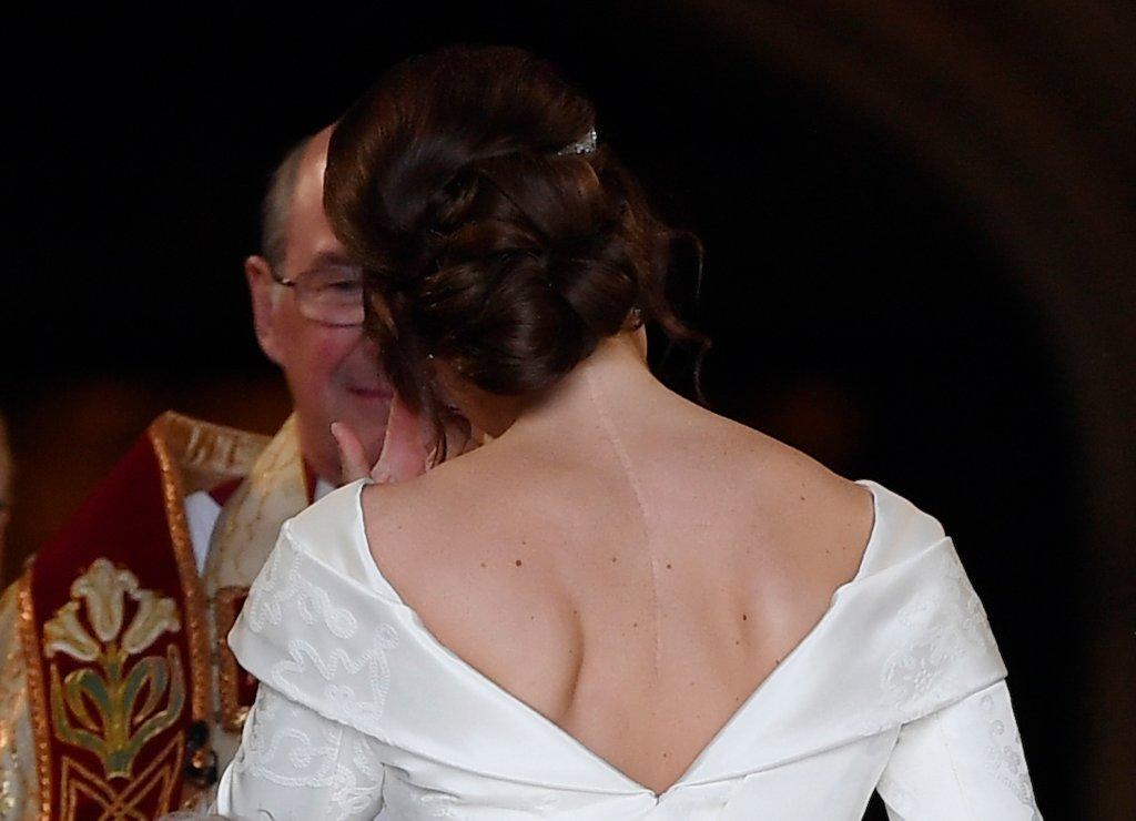 Princesa Eugenie, no dia de seu casamento, com cicatriz de cirurgia de escoliose à mostra