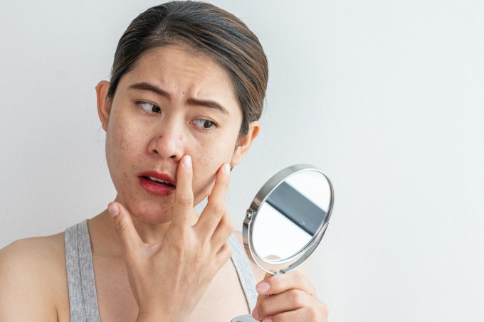 mancha-pele-tratamento